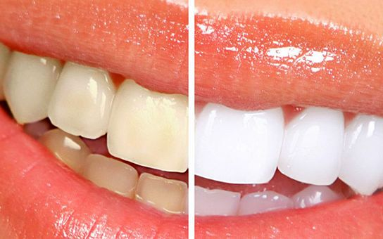 Zoom Whitening Before After